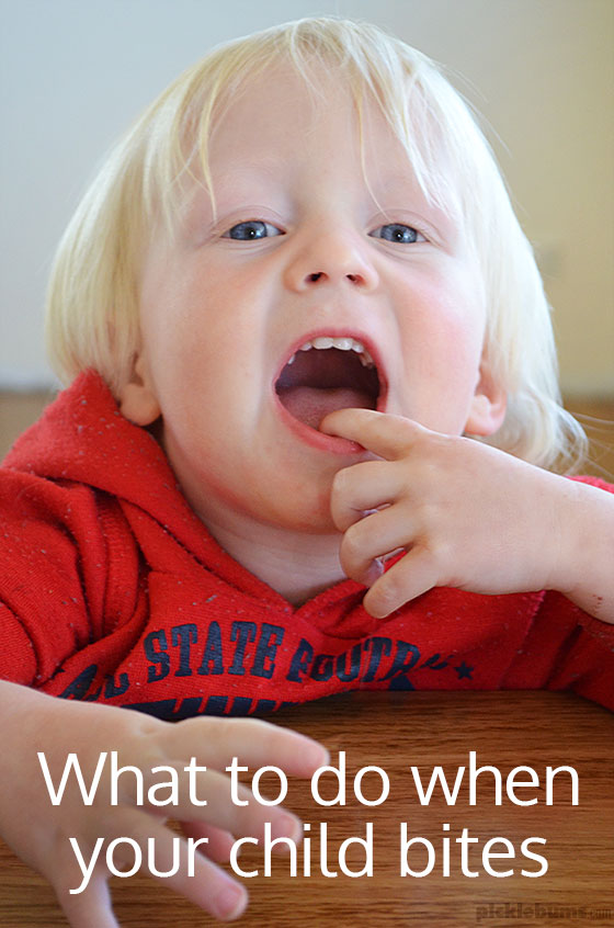 What to do when your child bites